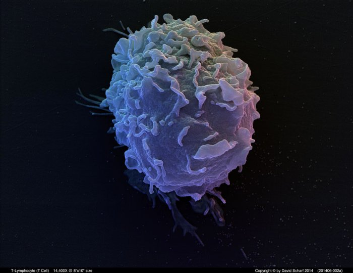 201406-002a-T-Cell1